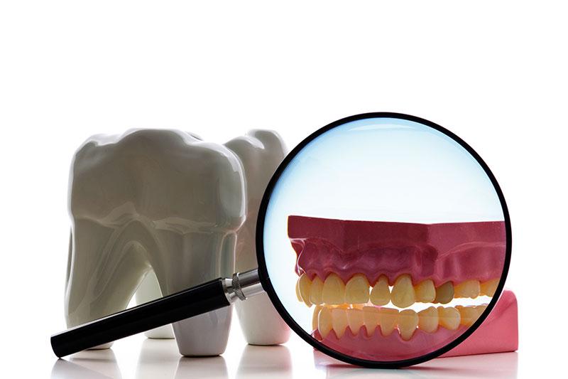 Root Canal - Azusa Dental Clinic, La Puente Dentist