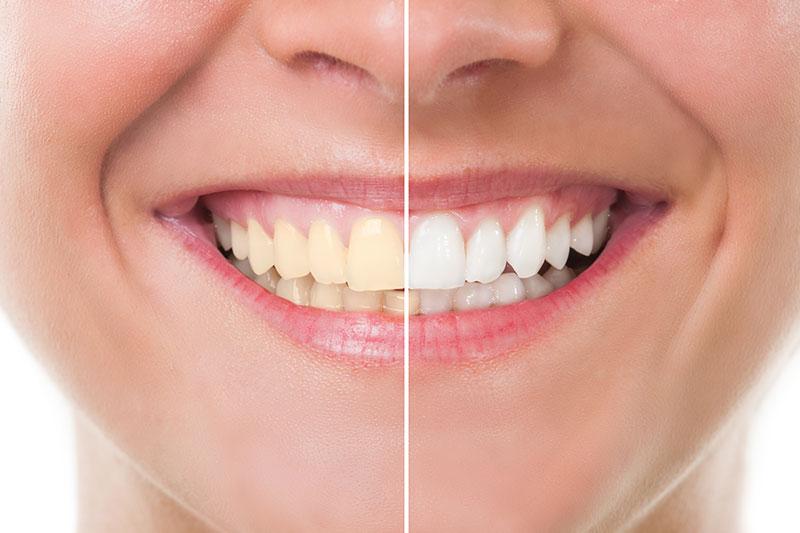 Teeth Whitening - Azusa Dental Clinic, La Puente Dentist