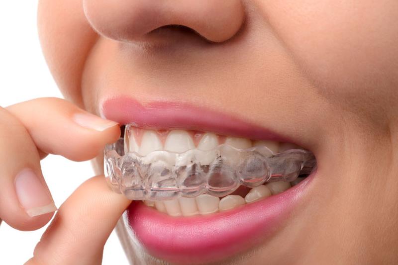 Invisalign - Azusa Dental Clinic, La Puente Dentist
